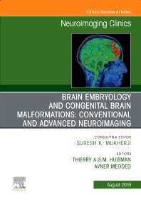 Cover image for Brain Embryology and the Cause of Congenital Malformations, An Issue of Neuroimaging Clinics of North America