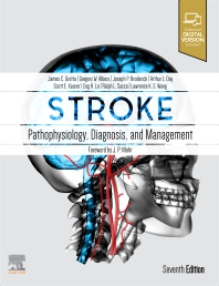 Cover image for Stroke