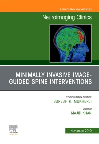 Cover image for Spine Intervention, An Issue of Neuroimaging Clinics of North America