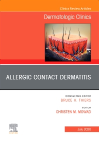 Cover image for Allergic Contact Dermatitis,An Issue of Dermatologic Clinics