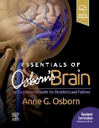 Essentials of Osborn's Brain - 1st Edition - ISBN: 9780323713207, 9780323713184