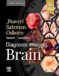Cover image for Diagnostic Imaging: Brain