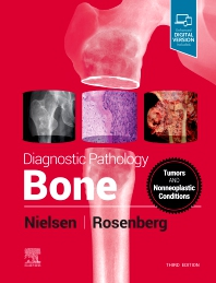 Cover image for Diagnostic Pathology: Bone