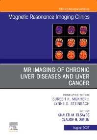 Cover image for MR Imaging of Chronic Liver Diseases and Liver Cancer, An Issue of Magnetic Resonance Imaging Clinics of North America