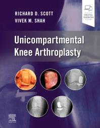Cover image for Unicompartmental Knee Arthroplasty