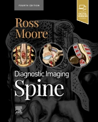 Cover image for Diagnostic Imaging: Spine