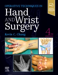 Cover image for Operative Techniques: Hand and Wrist Surgery