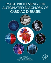 Cover image for Image Processing for Automated Diagnosis of Cardiac Diseases