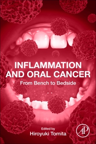 Cover image for Inflammation and Oral Cancer