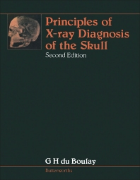 Principles of X-Ray Diagnosis of the Skull - 2nd Edition - ISBN: 9780407001176, 9781483191874