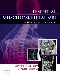 Cover image for Essential Musculoskeletal MRI