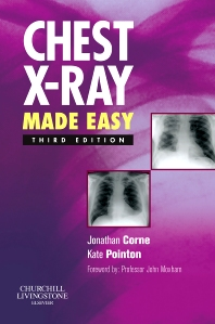 Cover image for Chest X-Ray Made Easy