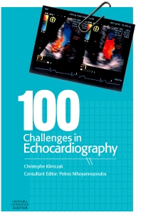 Cover image for 100 Challenges in Echocardiography