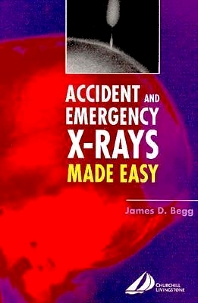 Cover image for Accident and Emergency X-rays Made Easy, International Edition