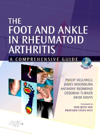 The Foot and Ankle in Rheumatoid Arthritis - 1st Edition - ISBN: 9780443101106, 9780702036774