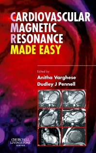Cover image for Cardiovascular Magnetic Resonance Made Easy