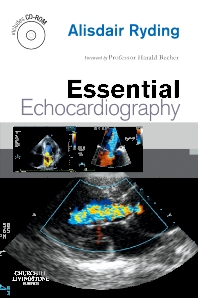 Essential Echocardiography