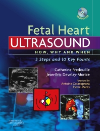 Fetal Heart Ultrasound