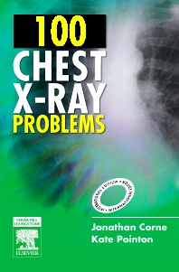 100 Chest X-Ray Problems, International Edition - 1st Edition - ISBN: 9780443070129