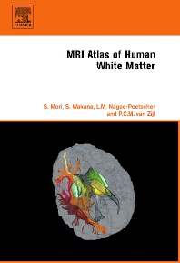 MRI Atlas of Human White Matter - 1st Edition - ISBN: 9780444517418, 9780080456164