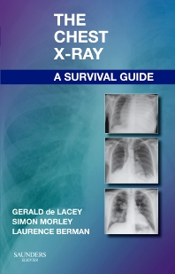 The Chest X-Ray: A Survival Guide - 1st Edition - ISBN: 9780702030468, 9780702051074
