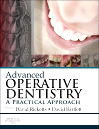 Advanced Operative Dentistry, 1st Edition,David Ricketts,David Bartlett,ISBN9780702031267