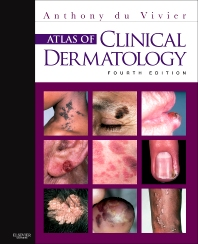 Atlas of Clinical Dermatology, 4th Edition,Anthony du Vivier,ISBN9780702034213