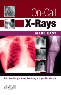 Cover image for On-Call X-Rays Made Easy