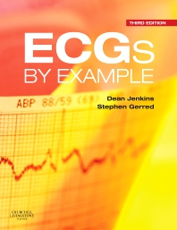Cover image for ECGs by Example