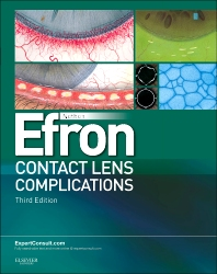Cover image for Contact Lens Complications