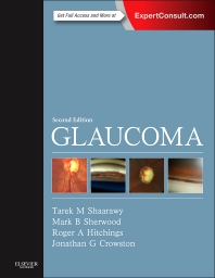 Cover image for Glaucoma
