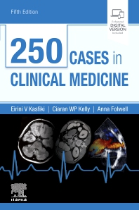 250 Cases in Clinical Medicine - 5th Edition - ISBN: 9780702074554, 9780702075339
