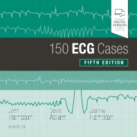 Cover image for 150 ECG Cases