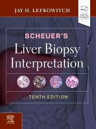 Scheuer's Liver Biopsy Interpretation - 10th Edition - ISBN: 9780702075841, 9780702075889