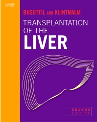 Transplantation of the Liver - 2nd Edition - ISBN: 9780721601182, 9781437712964
