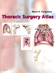 Cover image for Thoracic Surgery Atlas