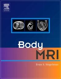 Body MRI - 1st Edition - ISBN: 9780721637402, 9781437720907