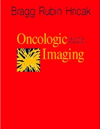 Oncologic Imaging - 2nd Edition - ISBN: 9780721674940, 9781437713190