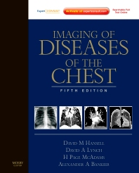 Cover image for Imaging of Diseases of the Chest