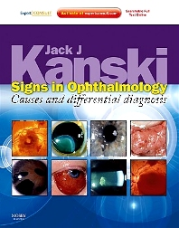 Signs in Ophthalmology: Causes and Differential Diagnosis - 1st Edition - ISBN: 9780723435488, 9780702057878