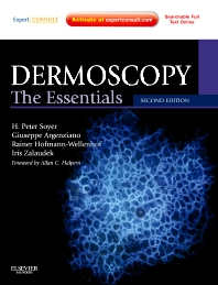 Dermoscopy - 2nd Edition - ISBN: 9780723435921, 9780702058134