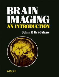 Brain Imaging - 1st Edition - ISBN: 9780723605966, 9781483183480