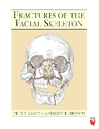 Cover image for Fractures of the Facial Skeleton