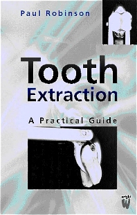 Tooth Extraction - 1st Edition - ISBN: 9780723610717
