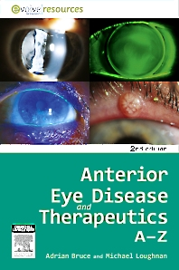 Cover image for Anterior Eye Disease and Therapeutics A-Z