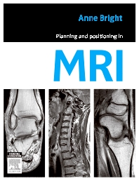 Planning and Positioning in MRI, 1st Edition,Anne Bright,ISBN9780729539852