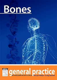 Bones - 1st Edition - ISBN: 9780729581936