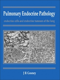 Pulmonary Endocrine Pathology - 1st Edition - ISBN: 9780750614405, 9781483193830