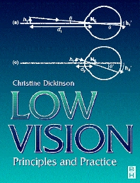 Cover image for Low Vision