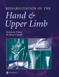 Cover image for Rehabilitation of the Hand and Upper Limb